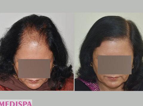 Get the best Female Hair Transplant in India at Medispa - 美丽与时尚