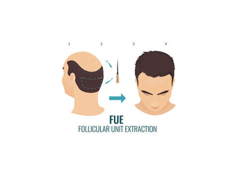Avail the best Fue Hair Transplant in India at Medispa - Services: Other