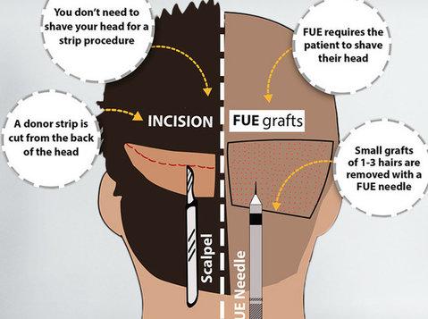 Medispa offer best Fue+fut Combine Technique Hair Transplant - Khác
