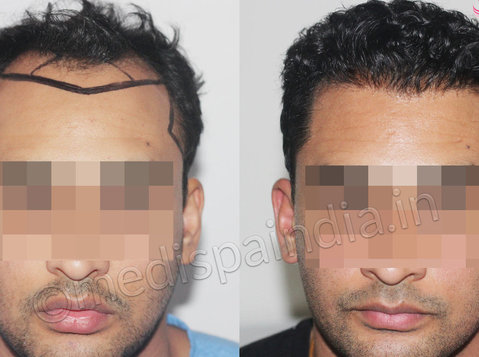 Get a new look with the best Hair Transplant in Indore - Services: Other