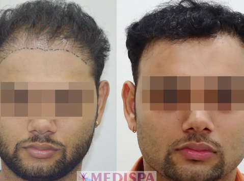 Best Hair Transplant In Mumbai At Medispa India - Services: Other