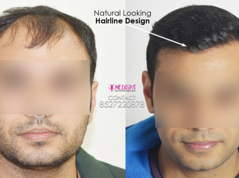 Revive Your Look With The Best Hair Transplant In Jaipur - Services: Other