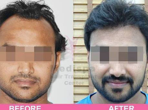 Avail the Best Hair Transplant in Kolkata at Medispa - Services: Other