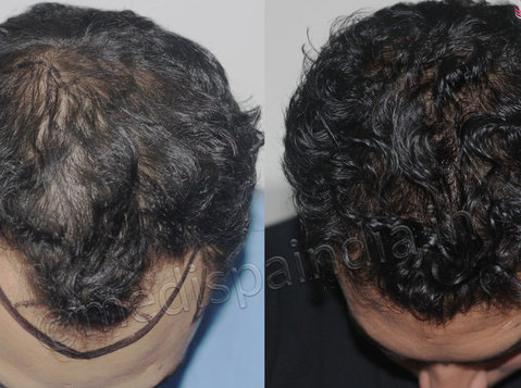 Avail the best Hair Transplant in Dubai (uae) at Medispa - Services: Other
