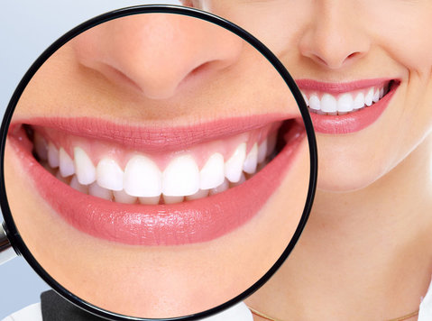 teeth whitening roswell ga - Services: Other