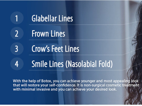 Best Clinic for Botox Treatment in Ahmedabad - Us Dental - دوسری/دیگر