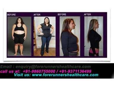 Low cost weight loss  surgery India - Hospitals & Clinics