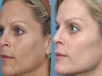 Skin Essence by Margo (1) - Beauty Treatments