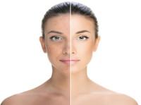Skin Essence by Margo (3) - Beauty Treatments