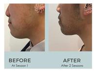 Body Catalyst (1) - Beauty Treatments