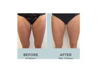 Body Catalyst (2) - Beauty Treatments