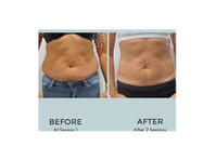 Body Catalyst (3) - Beauty Treatments