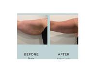 Body Catalyst (5) - Beauty Treatments