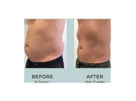 Body Catalyst (6) - Beauty Treatments