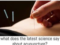 Essendon Natural Health (4) - Acupuncture
