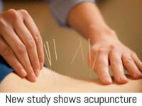 Essendon Natural Health (6) - Acupuncture