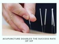 Essendon Natural Health (7) - Acupuncture