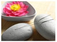 Acupuncture Maca (2) - Acupuncture