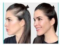 SureThik Blog (4) - Beauty Treatments