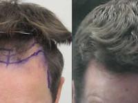 Rahal Hair Transplant Toronto (2) - Doctors