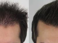 Rahal Hair Transplant Toronto (3) - Doctors