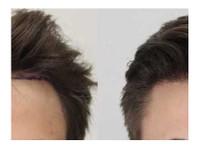 Rahal Hair Transplant Toronto (4) - Doctors