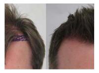 Rahal Hair Transplant Toronto (6) - Doctors