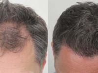 Rahal Hair Transplant Toronto (7) - Doctors