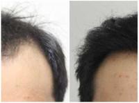 Rahal Hair Transplant Toronto (8) - Doctors
