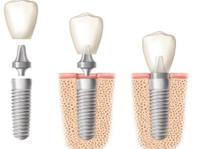 Mavrogenis Dental Clinic - Dental Implants (4) - Dentists