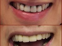 Mavrogenis Dental Clinic - Dental Implants (5) - Dentists