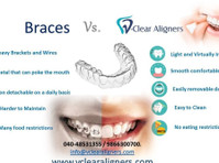 vclear aligners (opc) private limited (1) - Dentists