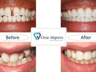 vclear aligners (opc) private limited (3) - Dentists