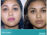 Specialist Cosmetic Surgeon clinic india (4) - Cosmetic surgery