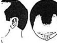 Hair Transplant Clinic In Delhi (1) - Cosmetic surgery
