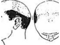 Hair Transplant Clinic In Delhi (2) - Cosmetic surgery