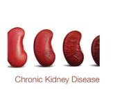 Rajesh Goel, Kidney Care Centre (6) - Hospitals & Clinics