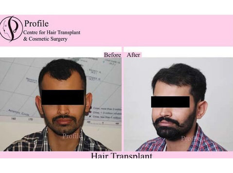 Profile Hair Transplant Centre - Alternative Healthcare