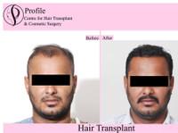 Profile Cosmetic Surgery Centre (2) - Alternative Healthcare