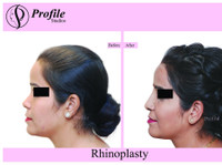 Profile Cosmetic Surgery Centre (3) - Alternative Healthcare