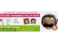 Natural Hair Transplant Ludhiana (4) - Hairdressers