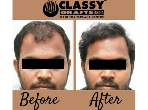 Classy Grafts, Profile Hair Transplant Centre - Hospitals & Clinics