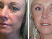 Beautiphi (6) - Cosmetic surgery