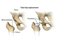 dr. kaushal malhan -  low cost hip surgeon in india (4) - Hospitals & Clinics