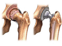 dr. kaushal malhan -  low cost hip surgeon in india (5) - Hospitals & Clinics