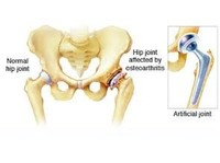 dr. kaushal malhan -  low cost hip surgeon in india (6) - Hospitals & Clinics