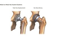 dr. kaushal malhan -  low cost hip surgeon in india (7) - Hospitals & Clinics