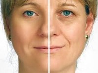 MySliM Beauty Salon - Non-surgical Ultrasound Liposuction (8) - Wellness & Beauty