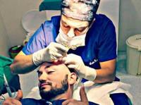 Global Health – زراعة الشعر في تركيا (1) - Chirurgia estetica