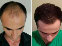 Global Health – زراعة الشعر في تركيا (3) - Chirurgia estetica